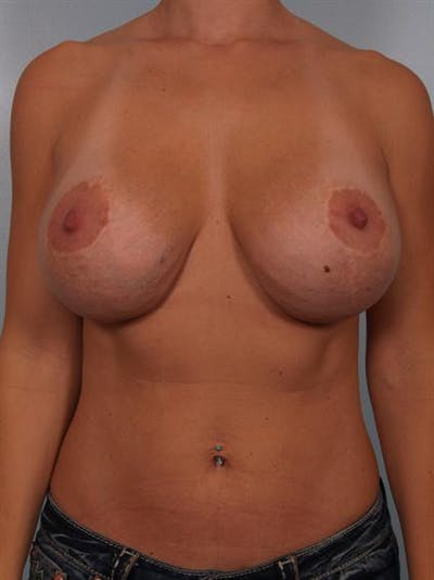 Complex Breast Revision Gallery - Patient 1310518 - Image 1