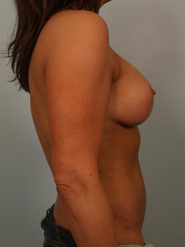 Breast Lift Gallery - Patient 1310516 - Image 6