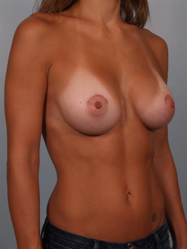 Breast Augmentation Gallery - Patient 1310517 - Image 6