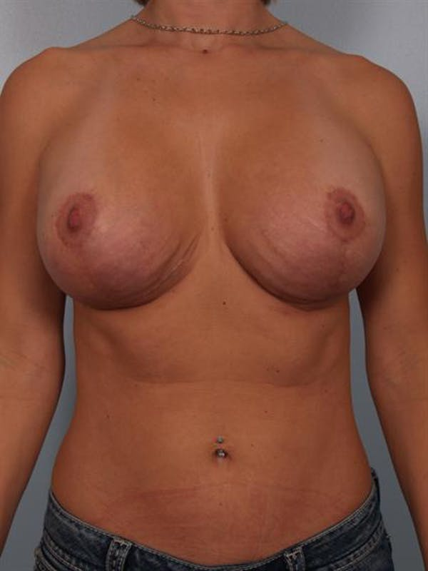 Complex Breast Revision Gallery - Patient 1310518 - Image 2