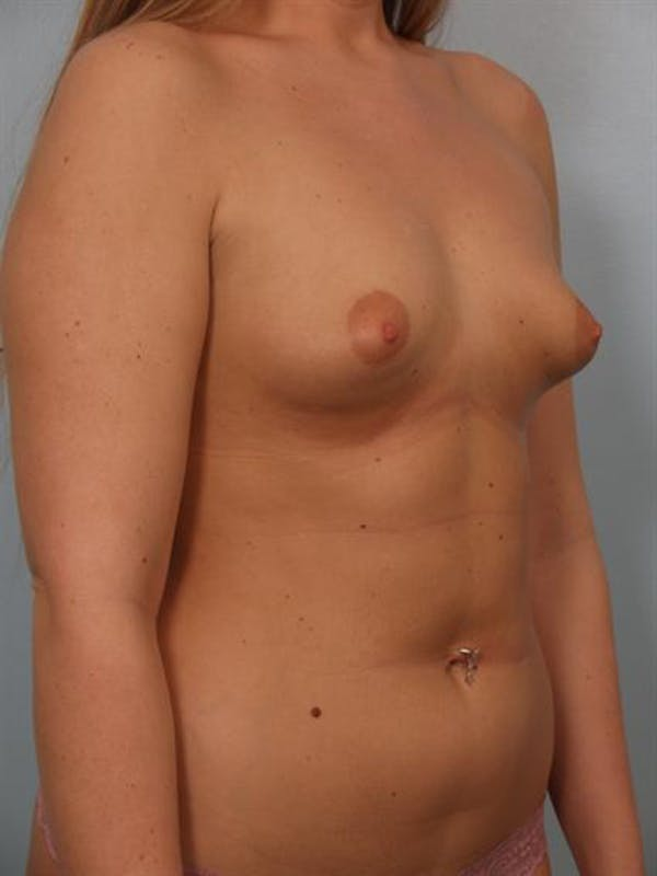 Tuberous Breast Surgery Gallery - Patient 1310519 - Image 3