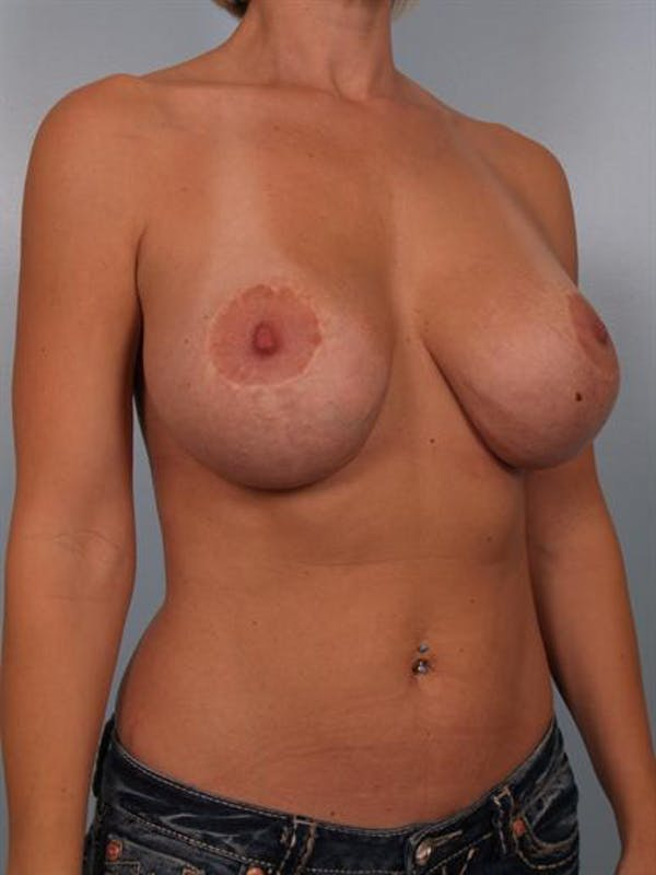 Complex Breast Revision Gallery - Patient 1310518 - Image 3