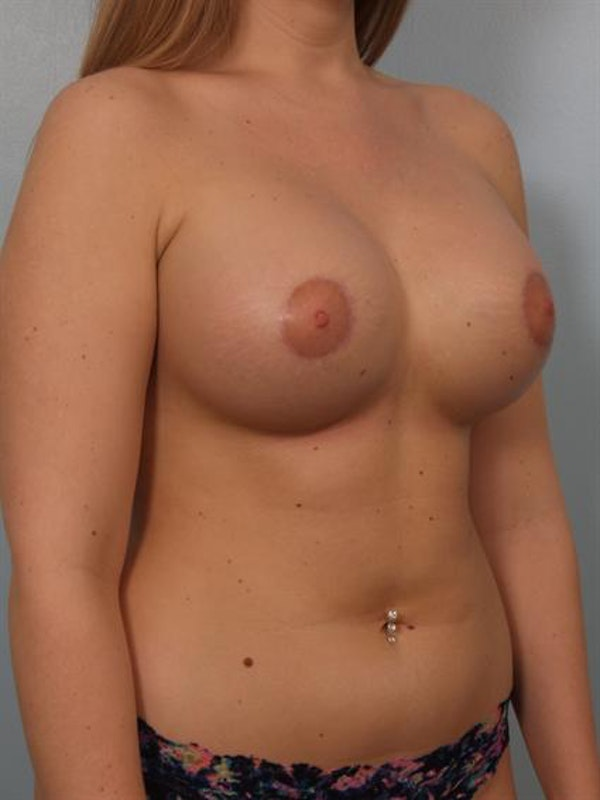 Tuberous Breast Surgery Gallery - Patient 1310519 - Image 4