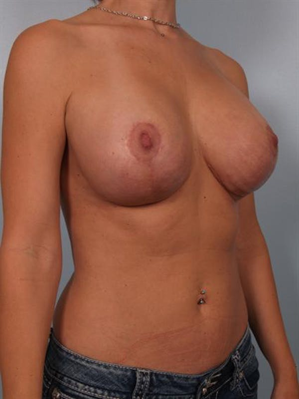 Complex Breast Revision Gallery - Patient 1310518 - Image 4