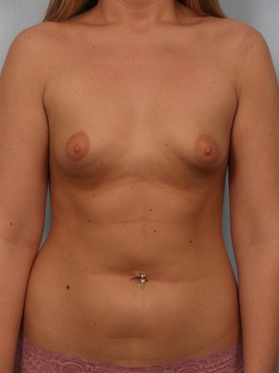 Tuberous Breast Surgery Gallery - Patient 1310519 - Image 1