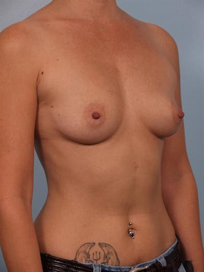 Breast Augmentation Gallery - Patient 1310521 - Image 1