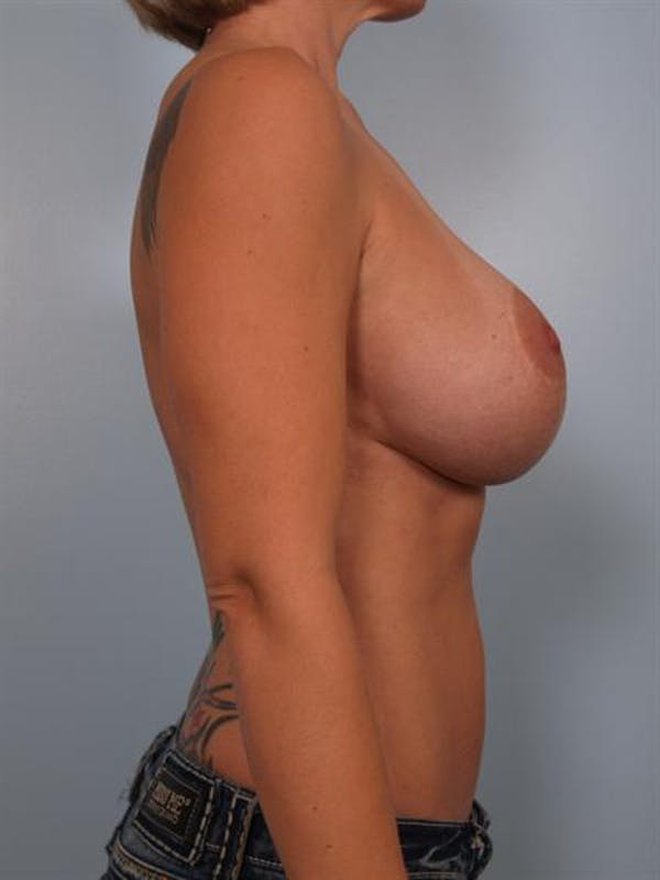 Complex Breast Revision Gallery - Patient 1310518 - Image 5