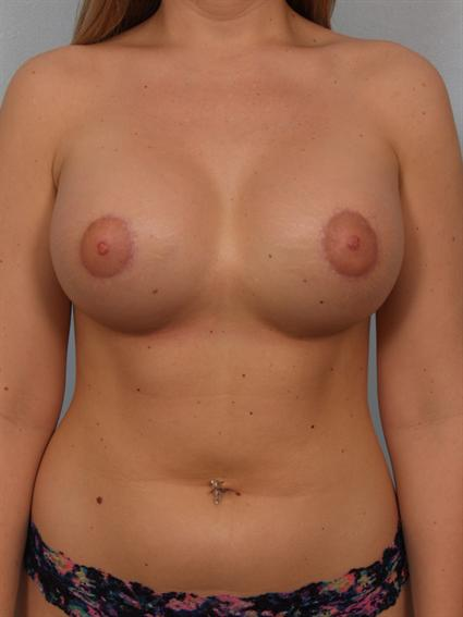 Image1 - Before and after image of Tuberous Breast Correction by Dr. Cohen.