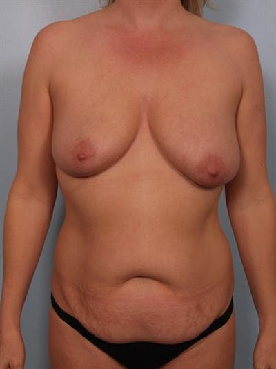 Breast Lift Gallery - Patient 1310520 - Image 1