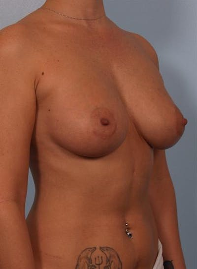 Breast Augmentation Gallery - Patient 1310521 - Image 2