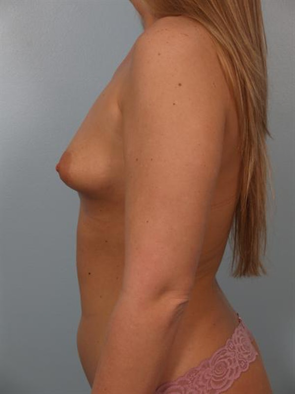 Tuberous Breast Surgery Gallery - Patient 1310519 - Image 5