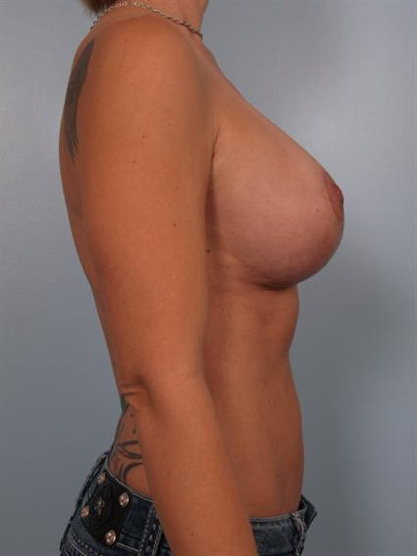 Complex Breast Revision Gallery - Patient 1310518 - Image 6