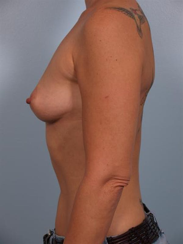 Breast Augmentation Gallery - Patient 1310521 - Image 3