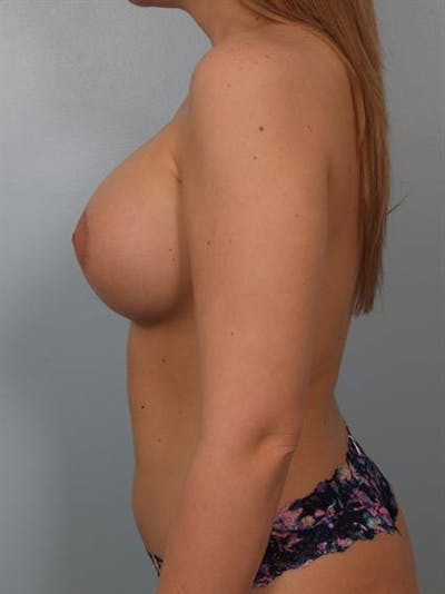 Tuberous Breast Surgery Gallery - Patient 1310519 - Image 6