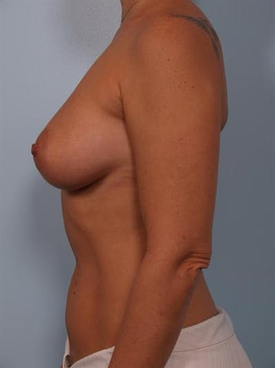 Breast Augmentation Gallery - Patient 1310521 - Image 4