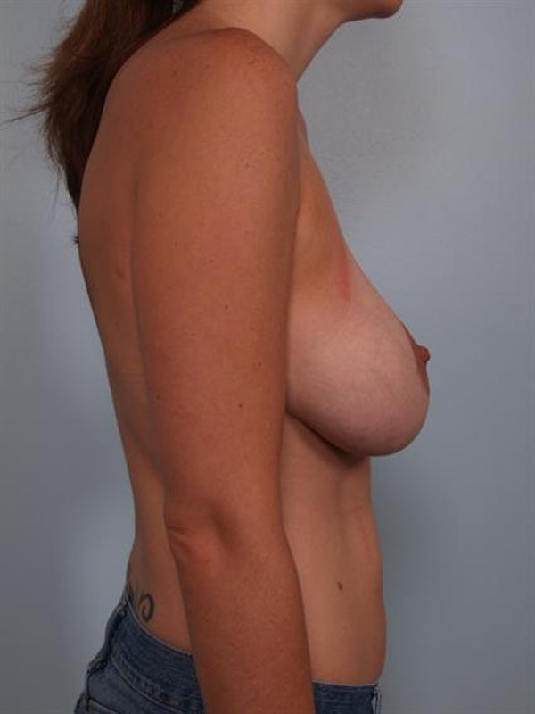 Complex Breast Revision Gallery - Patient 1310523 - Image 3