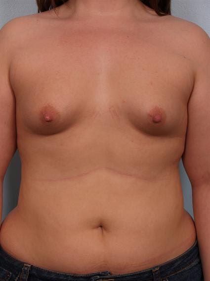 Tuberous Breast Surgery Gallery - Patient 1310522 - Image 1