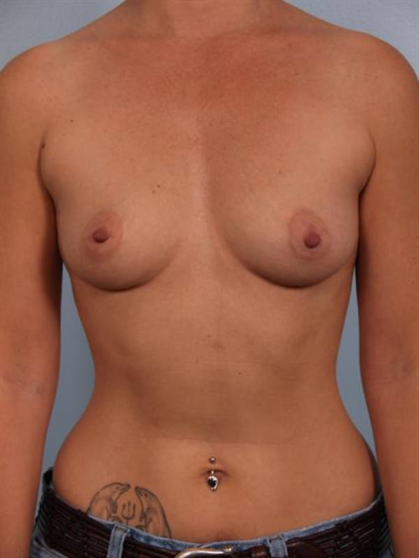 Breast Augmentation Gallery - Patient 1310521 - Image 5