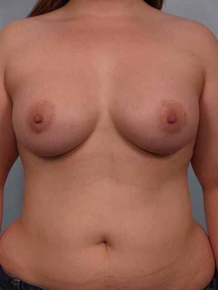 Tuberous Breast Surgery Gallery - Patient 1310522 - Image 2