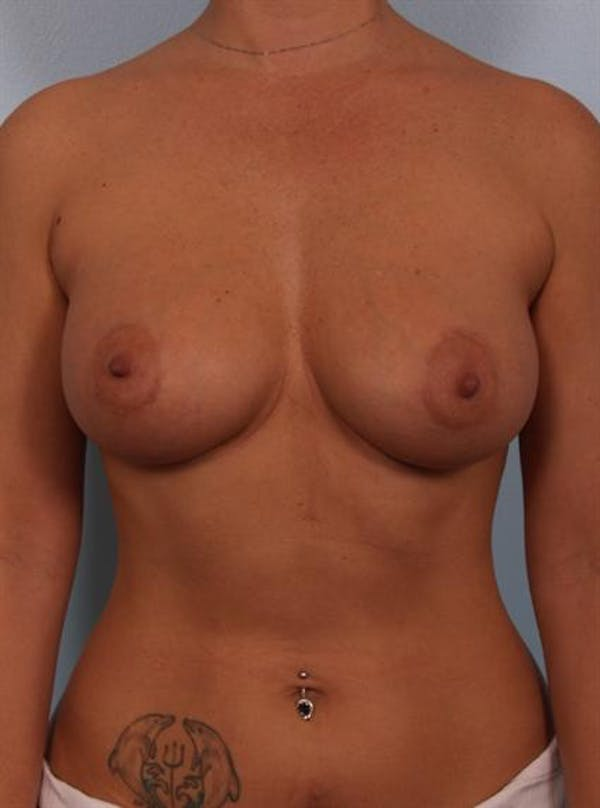 Breast Augmentation Gallery - Patient 1310521 - Image 6