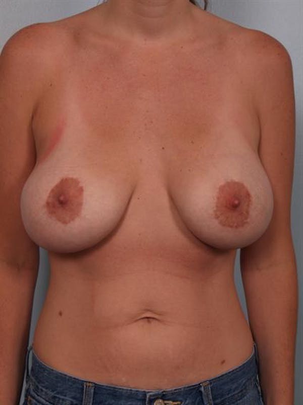Complex Breast Revision Gallery - Patient 1310523 - Image 1