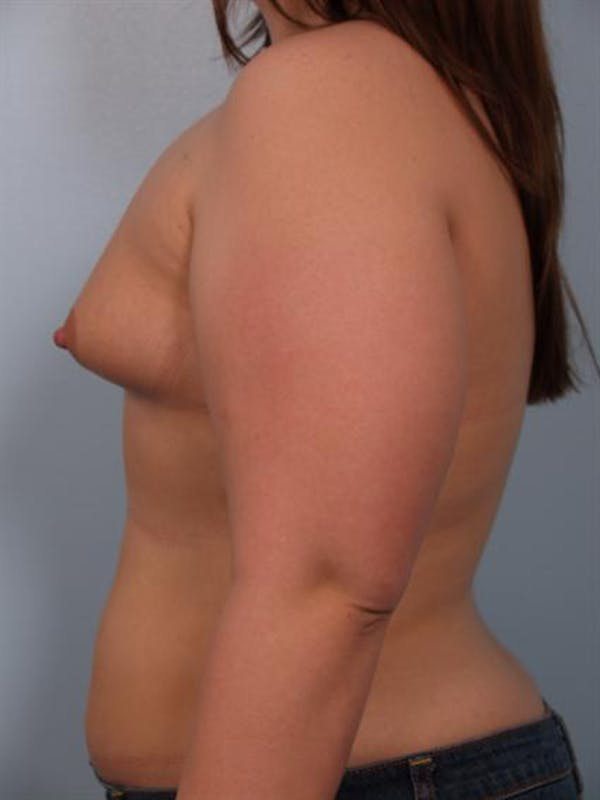 Tuberous Breast Surgery Gallery - Patient 1310522 - Image 3