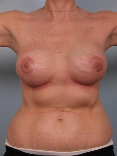 Breast Lift Gallery - Patient 1310524 - Image 2