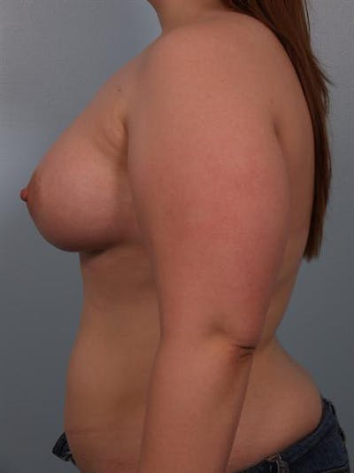 Tuberous Breast Surgery Gallery - Patient 1310522 - Image 4