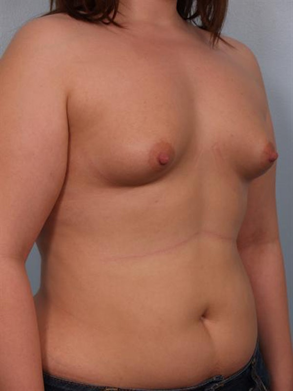 Tuberous Breast Surgery Gallery - Patient 1310522 - Image 5