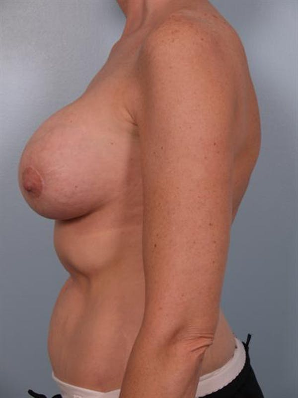 Breast Lift Gallery - Patient 1310524 - Image 3