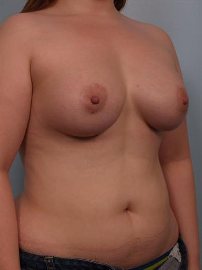 Tuberous Breast Surgery Gallery - Patient 1310522 - Image 6