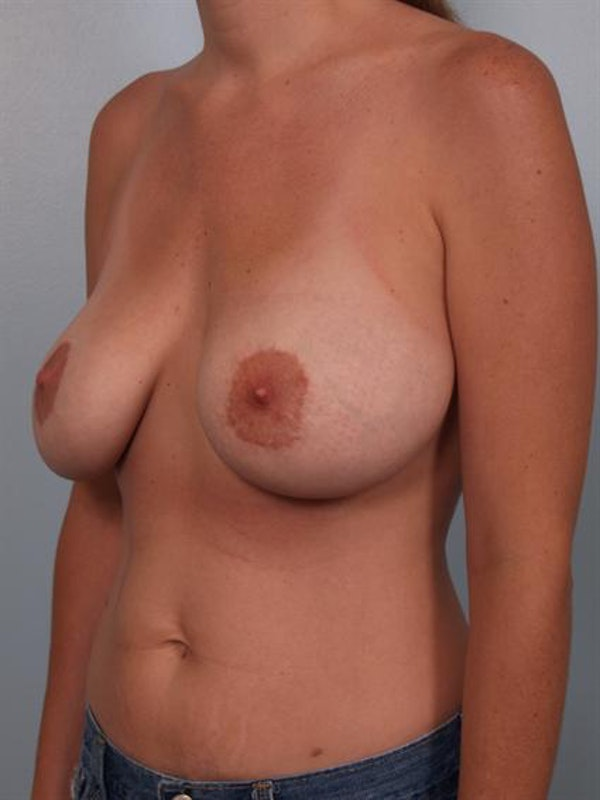 Complex Breast Revision Gallery - Patient 1310523 - Image 5