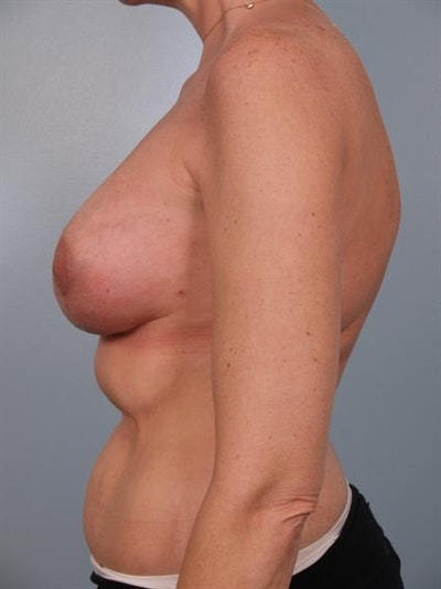 Breast Lift Gallery - Patient 1310524 - Image 4