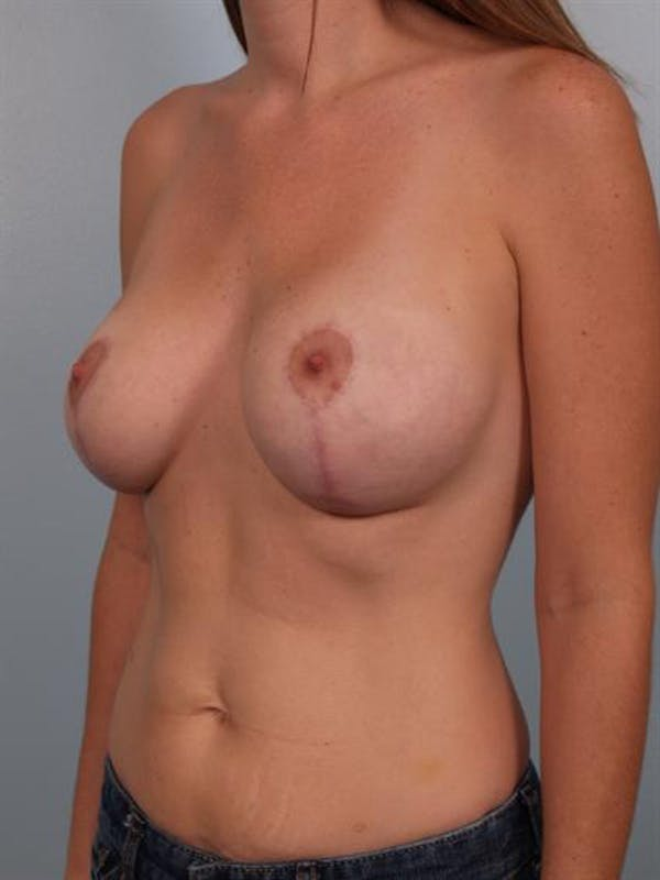 Complex Breast Revision Gallery - Patient 1310523 - Image 6