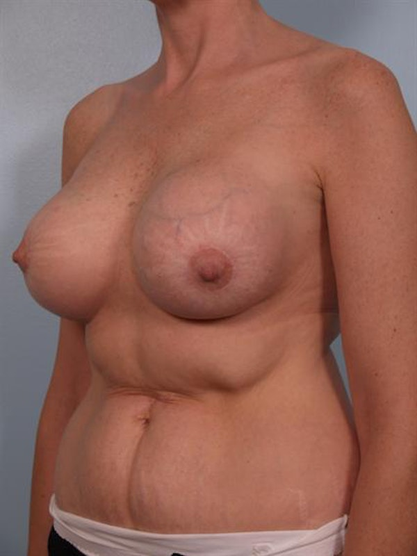 Breast Lift Gallery - Patient 1310524 - Image 5