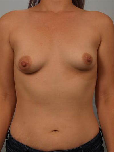 Tuberous Breast Surgery Gallery - Patient 1310525 - Image 1