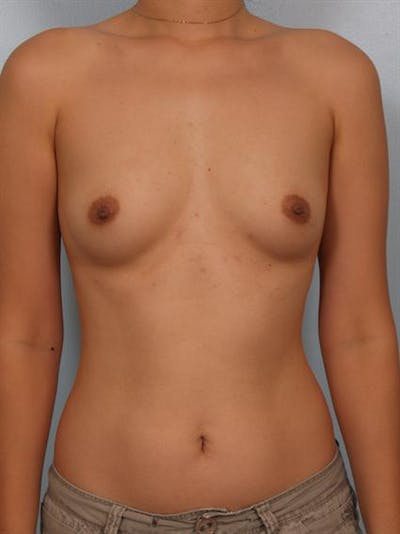 Breast Augmentation Gallery - Patient 1310527 - Image 1