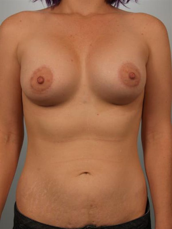 Tuberous Breast Surgery Gallery - Patient 1310525 - Image 2