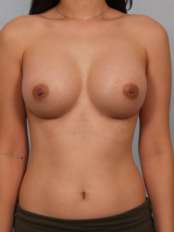 Breast Augmentation Gallery - Patient 1310527 - Image 2