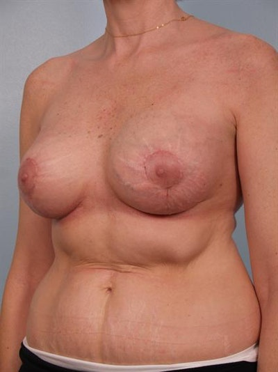 Breast Lift Gallery - Patient 1310524 - Image 6