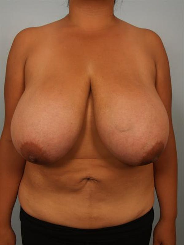 Breast Reduction Gallery - Patient 1310526 - Image 1