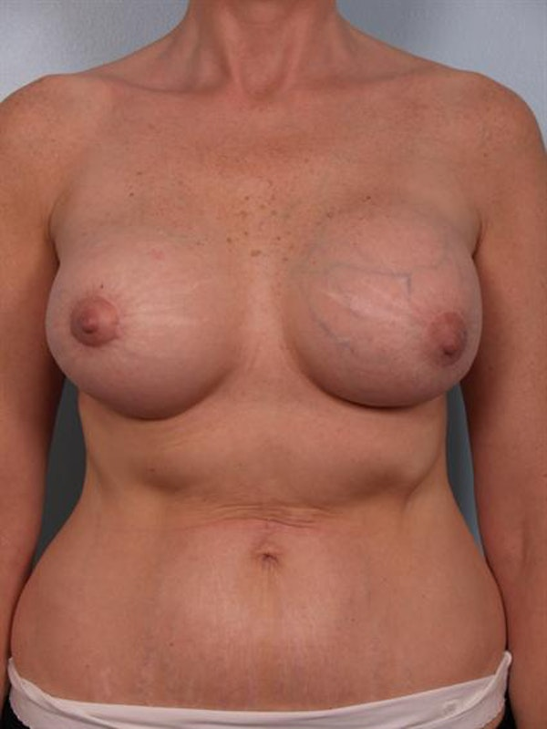 Breast Lift Gallery - Patient 1310524 - Image 7