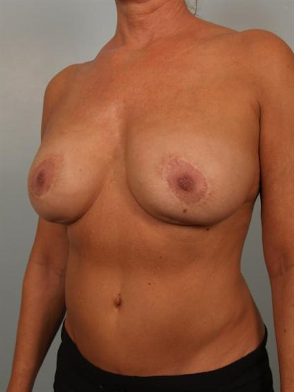 Complex Breast Revision Gallery - Patient 1310528 - Image 3
