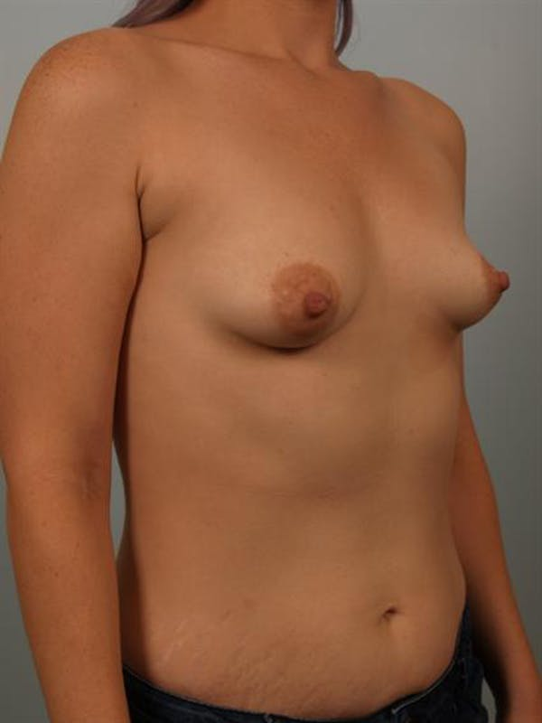 Tuberous Breast Surgery Gallery - Patient 1310525 - Image 3