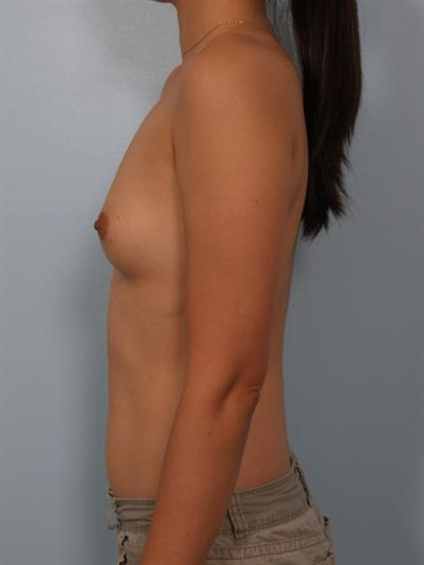 Breast Augmentation Gallery - Patient 1310527 - Image 3