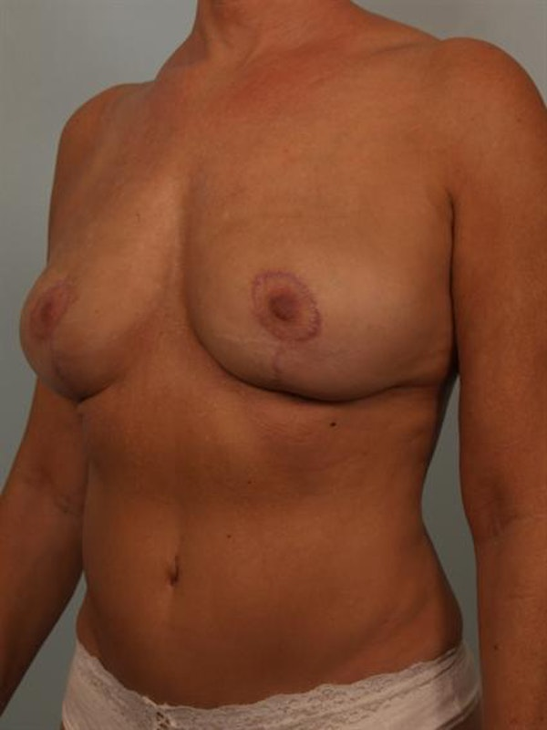 Complex Breast Revision Gallery - Patient 1310528 - Image 4