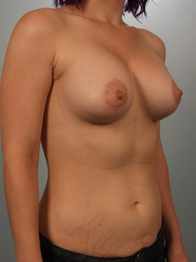Tuberous Breast Surgery Gallery - Patient 1310525 - Image 4