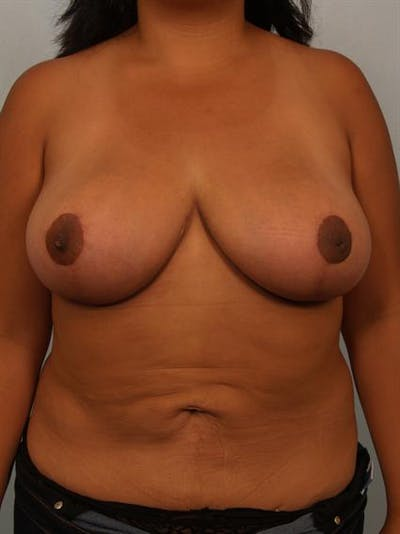 Breast Reduction Gallery - Patient 1310526 - Image 2