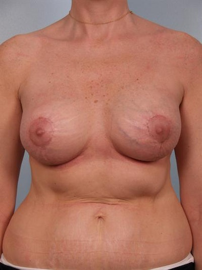 Breast Lift Gallery - Patient 1310524 - Image 8