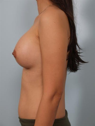 Breast Augmentation Gallery - Patient 1310527 - Image 4